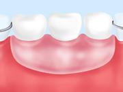 入れ歯(保険適用の場合)